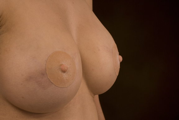 Sequence of Cancer survivor applying 2.25'' Medium-Colored Reforma Cosmetic Prosthetic Nipple